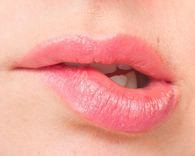 The Best Way to Soothe Sunburned Lips
