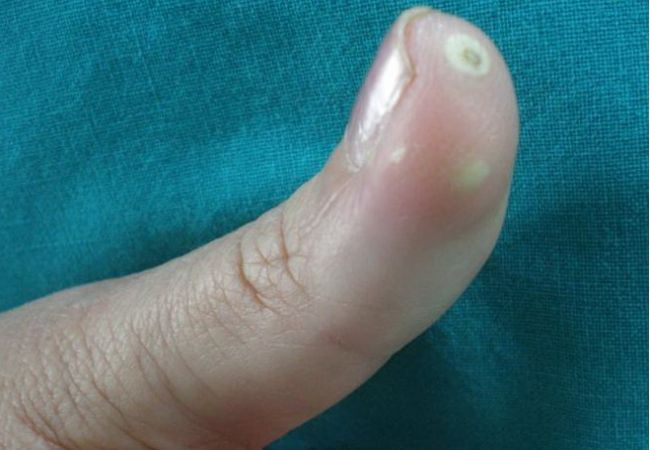 5 Most Common Symptoms And Signs Of CREST Syndrome | Calcinosis