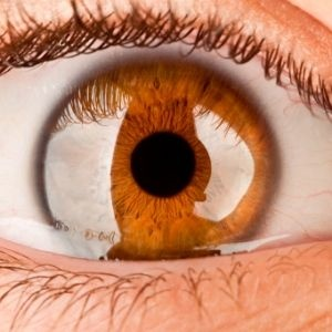 What is optic neuritis? Optic Neuritis: How Multiple Sclerosis (MS) Affects Your Eyes and Vision - from Health Central