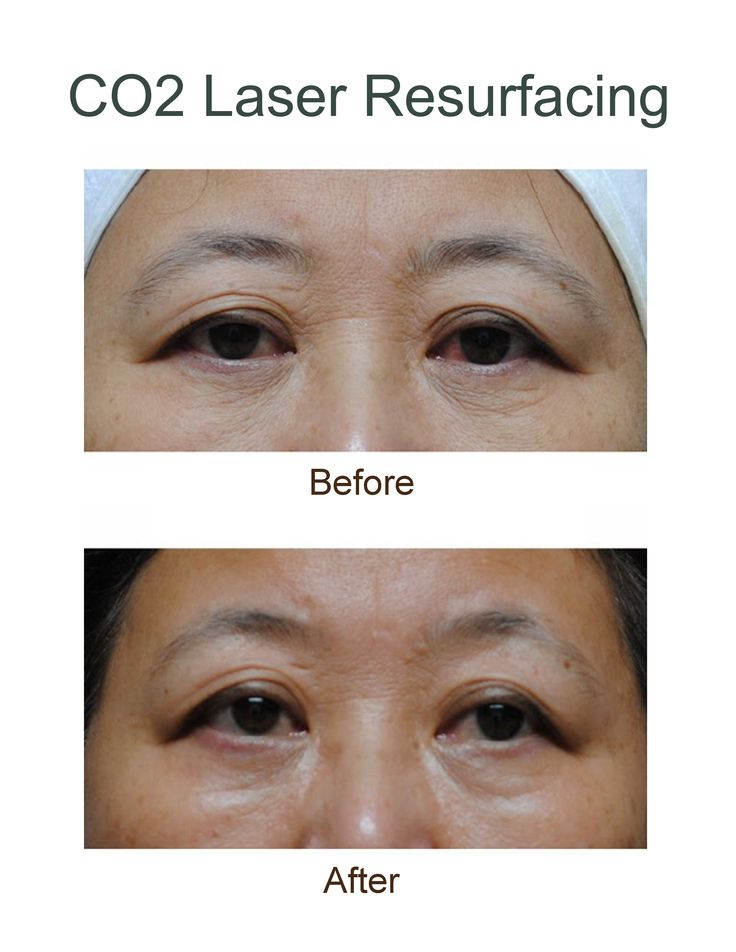 Before and after images showing the results from CO2 Laser Resurfacing #results #beforeandafter Eco2 #laserresurfacing