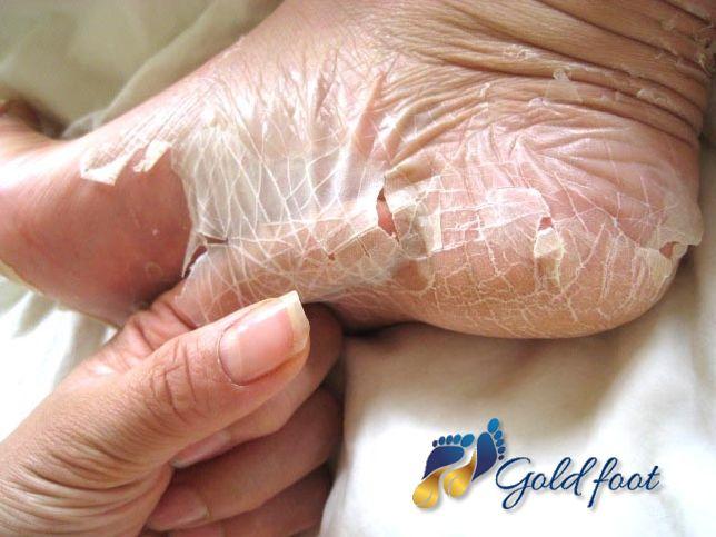 tak tak! taki właśnie efekt tylko dzięki kuracji GoldFoot :) Efekt gładkich i pięknych stóp przez ok. miesiąc :) Polecamy!
