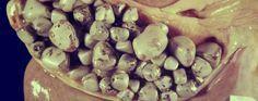 Esta poderosa recetaha ayudado a muchas personas. El médico chino Dr. Lai Chiu Nan se le ocurrió un remedio totalmente natural para eliminar las piedras de la vesícula biliar. Anuncios Los cálculos biliares o piedras en la vesicula causan dolor, ictericia, e incluso el cáncer.Dr. Lai dice que el cáncer no es la primera enfermedad …