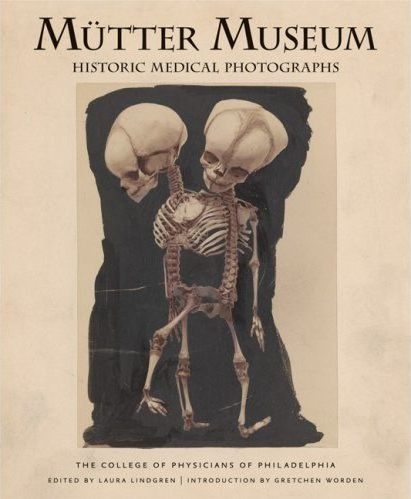 The  Mütter Museum is located in Philadelphia, PA.  It contains a collection of medical oddities, anatomical and pathological specimens, wax models, and antique medical equipment. http://www.collegeofphysicians.org/mutter-museum/