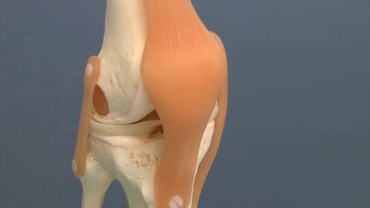 Účinný lék na artritidu, revmatismus a potíže s klouby