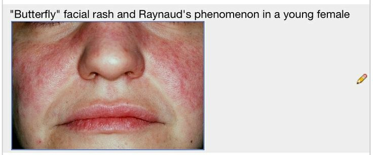 Reynaud's Syndrome of face