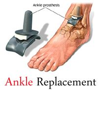 """Ankle Fusion is a surgical practice that does away with the faces of the ankle joint to promote a fusion among the tibia and talus. """"Fusion"""" denotes bones developing together. Fusion isn't done on the ankle only and is also done on added joints of the body that are experiencing acute pain."""