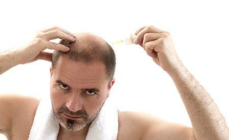 Glatzenbildung ist umkehrbar. Die Haarwurzeln schrumpfen zwar bei längerer Inaktivität, sie sterben aber nicht ab. Durch Anregung mit Nährstoffen werden die Haarwurzeln wieder aktiviert, die Rückbildung einer Glatze ist möglich