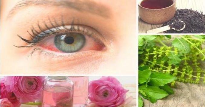 10 remedios naturales para la conjuntivitis alérgica o bacteriana
