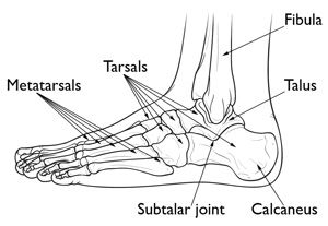 Calcaneus (Heel Bone) Fractures http://www.osmsgb.com/Education.aspx #footinjuries #heelfracture