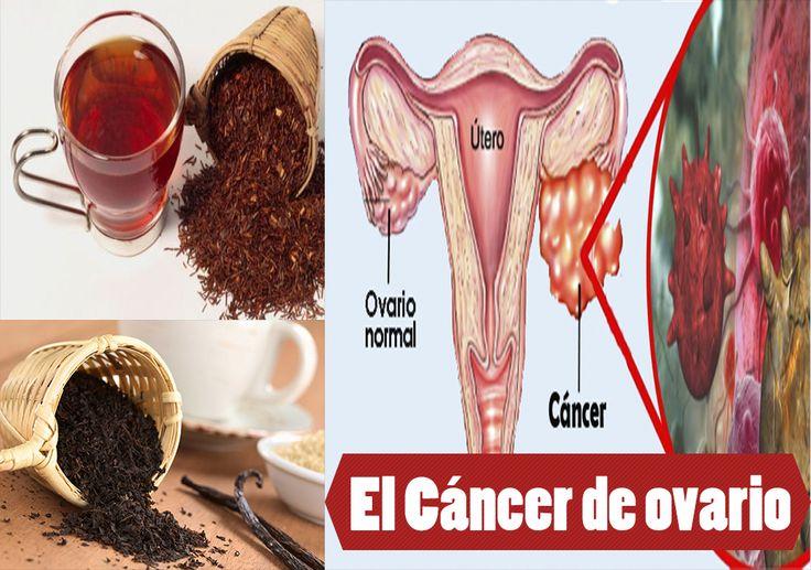 Beber este té reduce el riego del cáncer de ovario