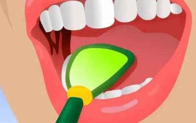 L'alito cattivo è causato da cibi come l'aglio, la cipolla, il caffè e l'alcol, ma gli esperti concordano che molto spesso questo problema è dovuto ad una scarsa igiene orale. Sotto le nostre gengive