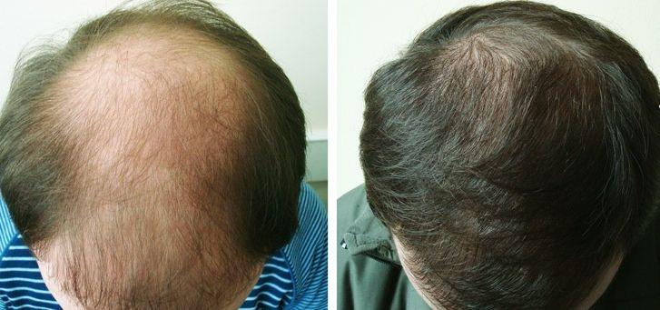 Η μεταμόσχευση μαλλιών δεν είναι πλέον αποτελεσματική