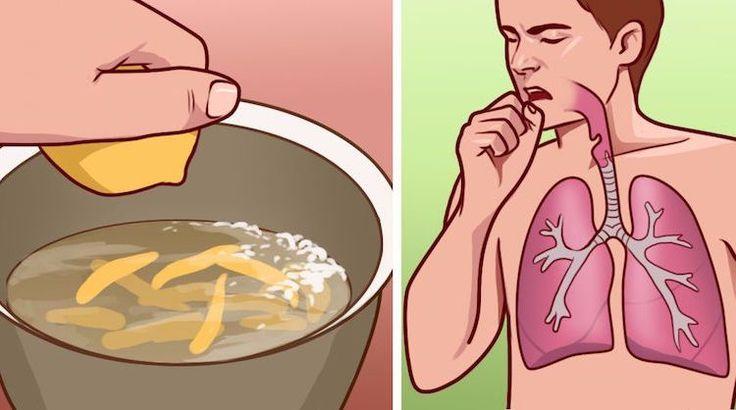 8 domácich receptov na zápal priedušiek a záchvaty kašľa
