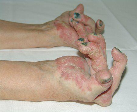 A szerkesztőktől: A járványügyi kutatások és statisztikák szerint a pikkelysömör az egyik leggyakoribb bőrbetegség. Világszerte, mintegy 250 millió ember szenved ebben a betegségben....
