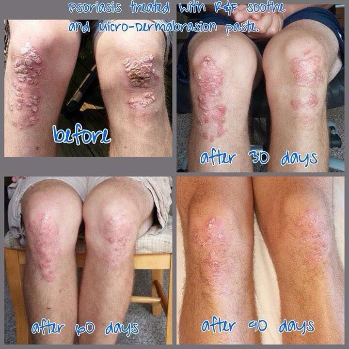 Psoriasis - Soothe and MD Paste