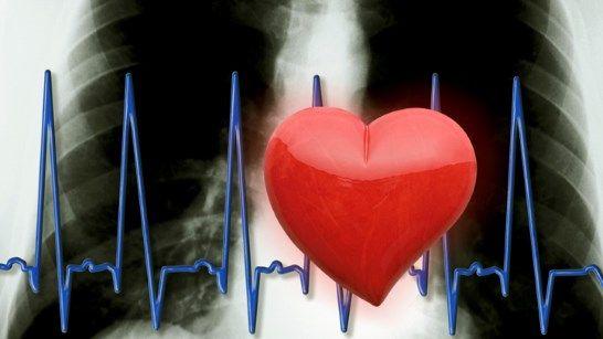 Sudden Cardiac Arrest May Not Be So Sudden | Everyday Health