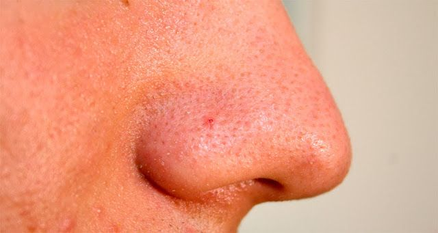 How To Remove Blackheads | To Share News