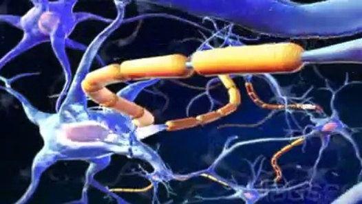 """La sclérose latérale amyotrophique, appelée aussi """"maladie de Charcot"""" (du nom du médecin qui l'a décrite au 19e siècle) est une maladie neurodégénérative (destruction des cellules nerveuses). Elle se caractérise par un affaiblissement puis une paralysie des muscles des jambes et des bras, des muscles respiratoires, de la déglutition et de la parole."""