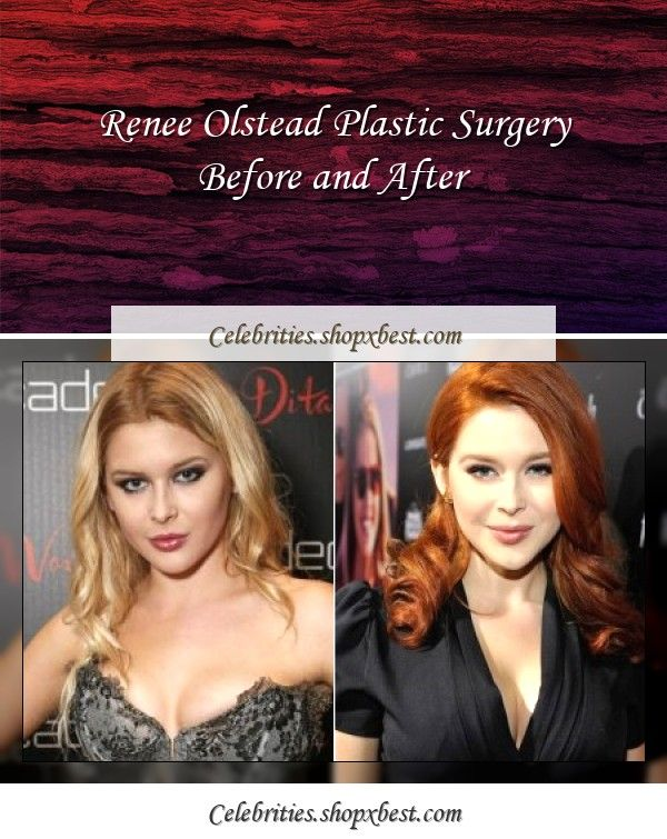 Renee Olstead Plastic Surgery Before And After In 2020 Renee Olstead Plastic Surgery Celebrity Surgery