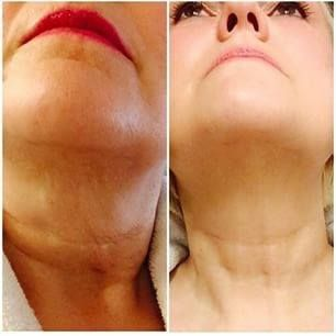 Cellular Rejuvenation Serum NOT surgery...need I say more? | More info: http://www.barbarav.jeunesseglobal.com/