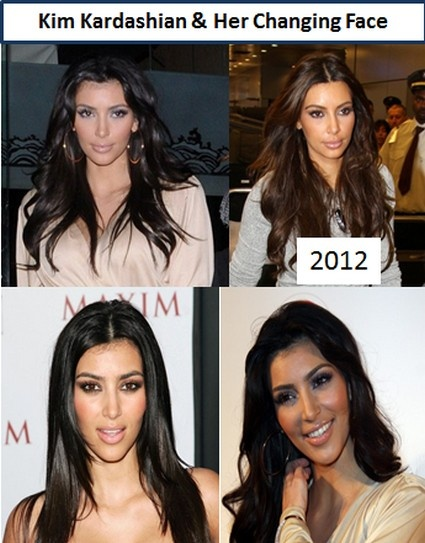 1 Before And After Kim Kardashian S Plastic Surgery