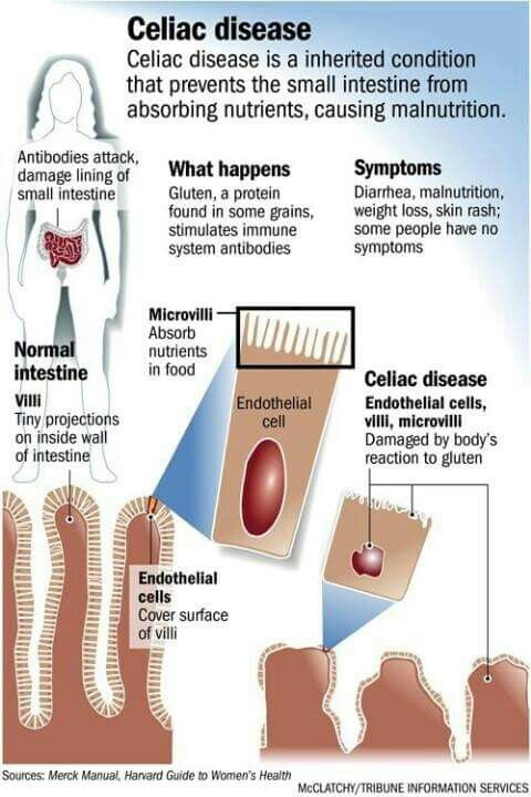 Celiac Disease good information...