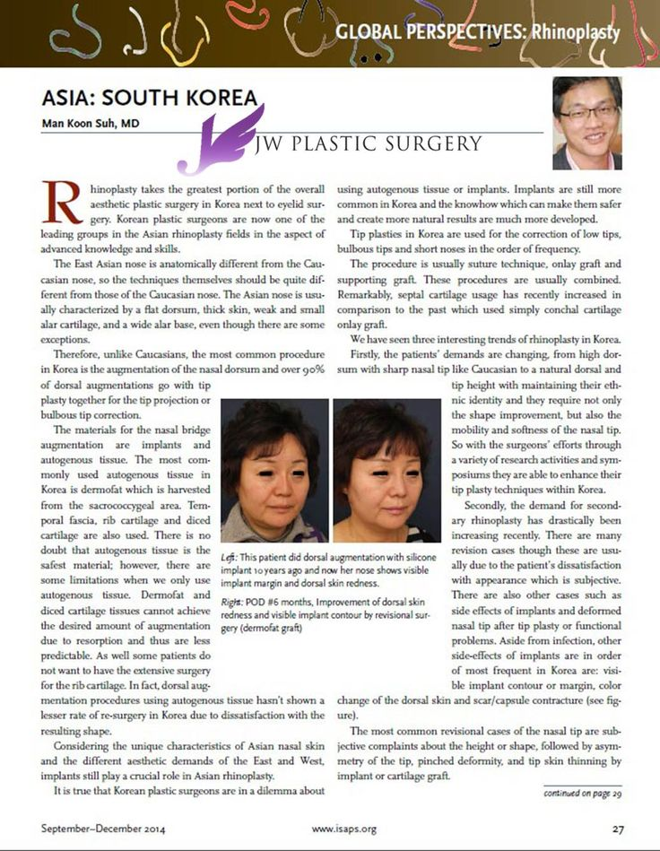"""Dr. Man Koon, Suh in on """"ISAPS""""(New letter of International Society of Aesthetic Plastic Surgery)   articles about Rhinoplasty and his book """"Asian Rhinoplasty by Man Koon, Suh M.D."""" #rhinoplasty #ManKoonSuh #JW #JWplasticsurgery #ISAPS #article"""