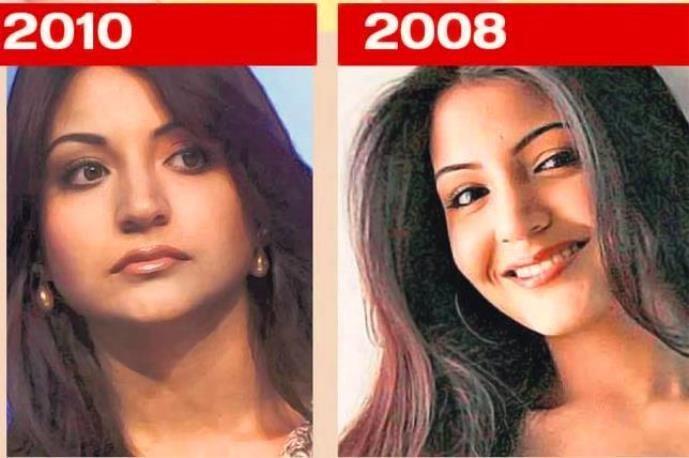 ansuhka sharma lip job before and after 2013-2014