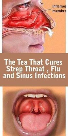 The Tea That Cures Sinus Infections, Strep Throat and Flu - InShapeToday