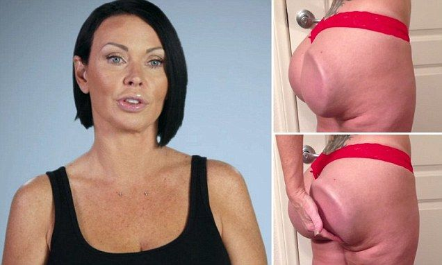 Woman who can FLIP her butt implants due to botched ...