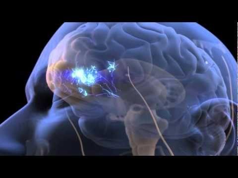 Entre une douleur aiguë et une douleur chronique, les zones cérébrales concernées/stimulées sont différentes. La prise en charge thérapeutique doit donc être différente selon le type de douleur.