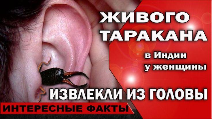 🚑 В Индии у женщины из головы извлекли живого таракана  #ValeryAliakseyeu