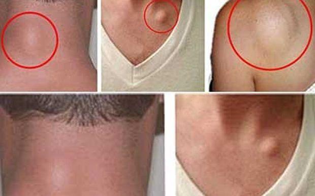 Vous avez une boule souple et palpable sous votre peau? Pas besoin de paniquers'il s'agit d'un lipome. Les lipomes sont des tumeurs bénignes constituées