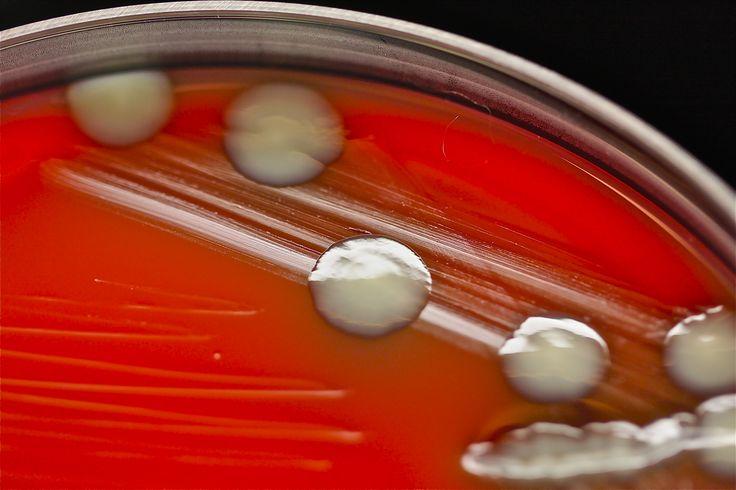 Klebsiella pneumoniae on blood agar::Klebsiella pneumoniae grown on blood agar for 48 hrs at 37 degree's C. Image courtesy MicrobeWorld user Tasha Sturm, Cabrillo College.