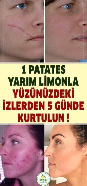 Yüzde ne kadar iz varsa hepsinden 1 patates yarım limonla sadece 5 günde kurt…