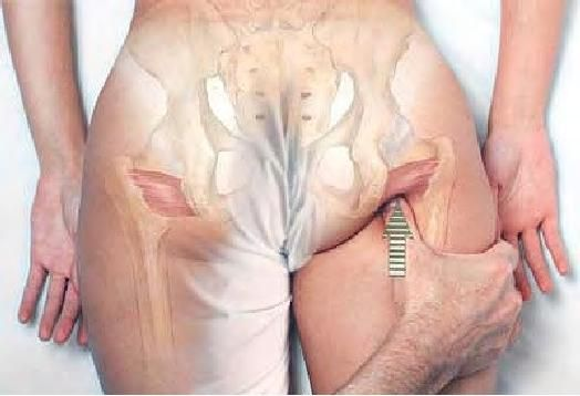 Basic Clinical Massage