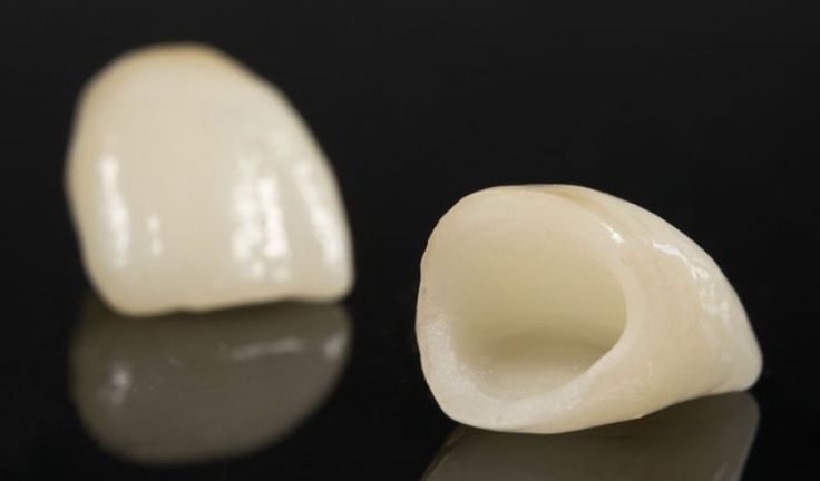 Dental Crowns: reasons, problems, types