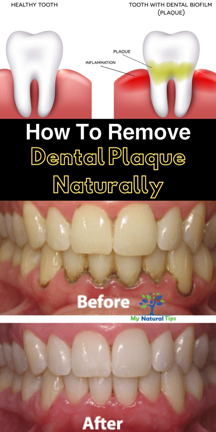 Remove Dental Plaque Naturally in 2020 (With images