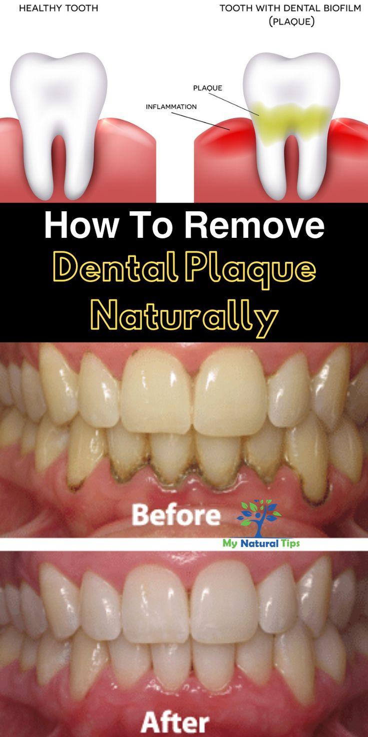 How to remove dental plaque naturally dental plaque