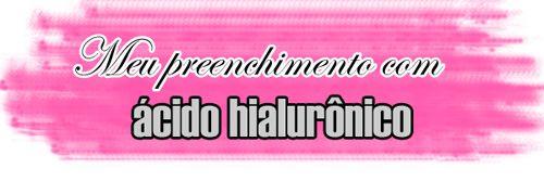 http://www.euvouderosa.com/http://www.euvouderosa.com/2015/11/meu-preenchimento-com-acido-hialuronico-nas-olheiras-sobre-os-hematomas.html