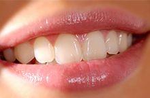 Wat is een whitening? Whitening, bleken of bleaching van je tanden: het zijn allemaal synoniemen voor de methode om gele of grijze tanden witter te maken, het is een soort dieptereiniging van het glazuur. #glamsmile #whitening #smile #whiteteeth http://glamsmile.be/nl/whitening