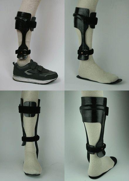 Varus Foot Deformity   Ankle Varus Deformity