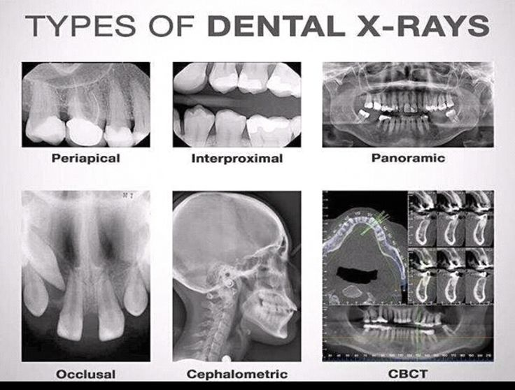 Types of Dental X-Rays