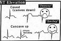What is a J-point elevation?        J-point is the point at which the QRS complex meets the ST wave. #nurse