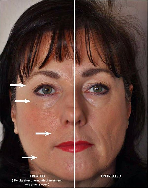 Before  After Nuskin Treatments  I have a droopy right eye, I use this device and concentrate on the areas around my eye and it helps the appearance look UN saggy ~ole