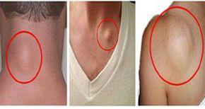 Быстрое и простое удаление жировой ткани совершенно естественным способом