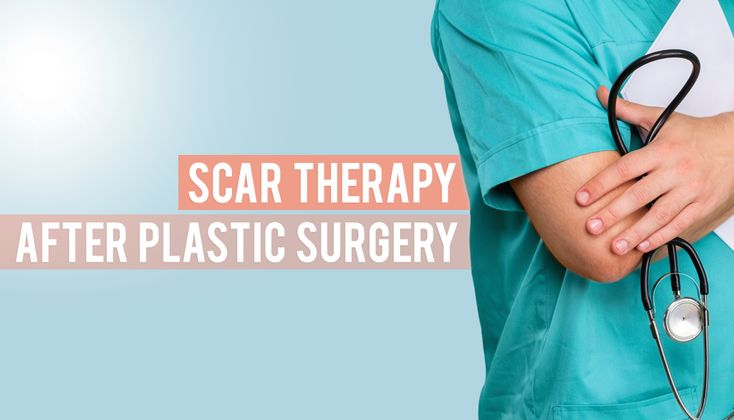 Plastic surgery is a popular next step after WLS. If you have a concern about scars, read the many options you have for scar therapy after plastic surgery!