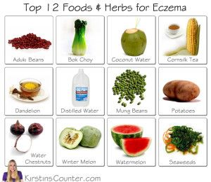 Natural Foods That Help Eczema