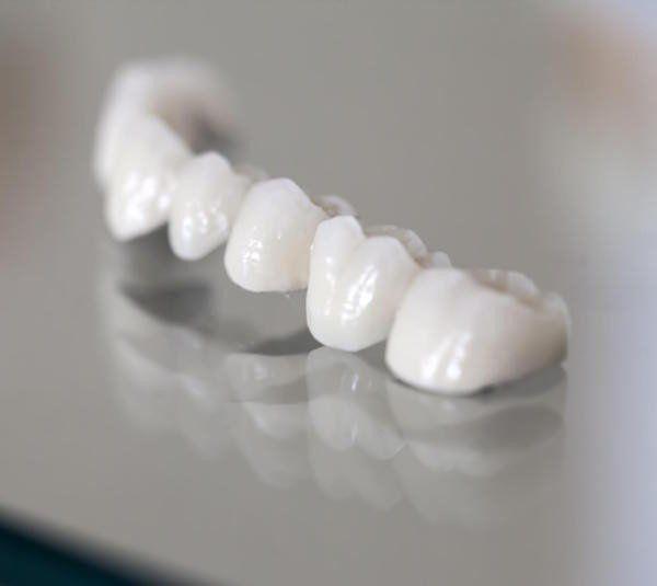 Do Dental Crowns Last Forever? www.supasmile.com.au