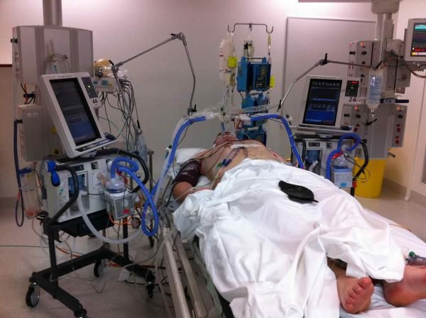 Basics in Mechanical Ventilation: Getting to know its parameters and set-up